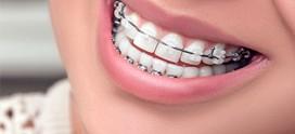 نحوه مراقبت از دندان های ارتودنسی شده