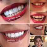 دندانپزشکی-زیبایی