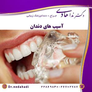 آسیب های دندان