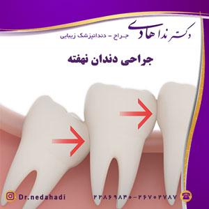 جراحی دندان نهفته