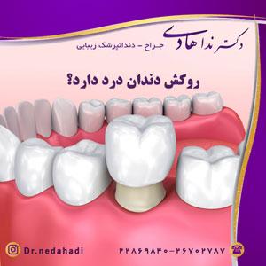 روکش-دندان-درد-دارد؟