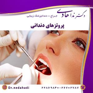 پروتزهای دندانی