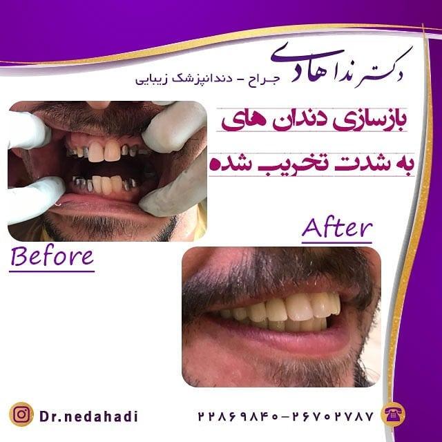 بازسازی دندان های تخریب شده