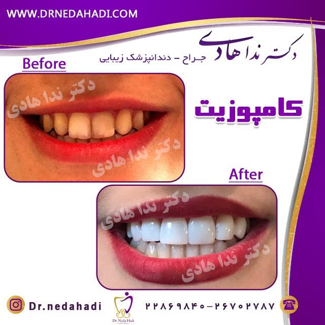 نمونه کامپوزیت دندان توسط دکتر ندا هادی