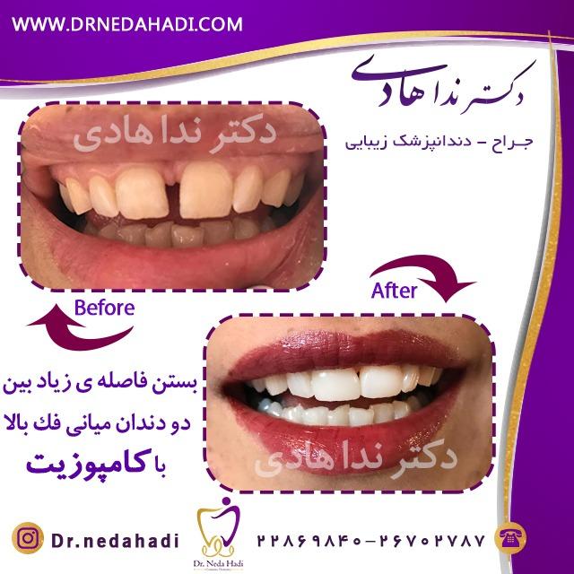 بستن فاصله بین دو دندان فک بالا با کامپوزیت