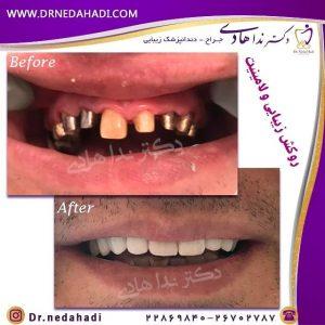 نمونه ایمپلنت فوری دندان توسط دکتر ندا هادی