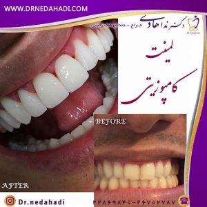 نمونه لمینت دندان توسط دکتر ندا هادی