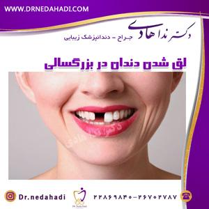 لق شدن دندان در بزرگسالی