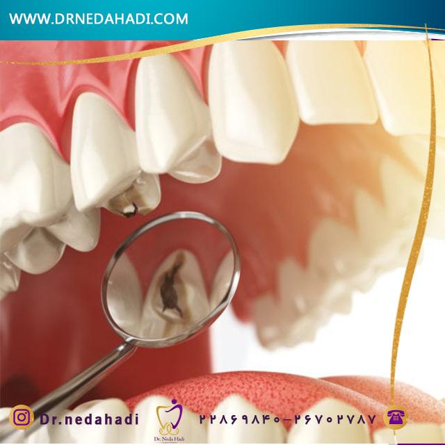 درمان حفره خشک دندان